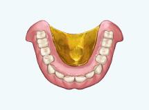 金属床義歯ゴールド